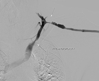 A rare anatomic variant of a single-conduit supraclavicular