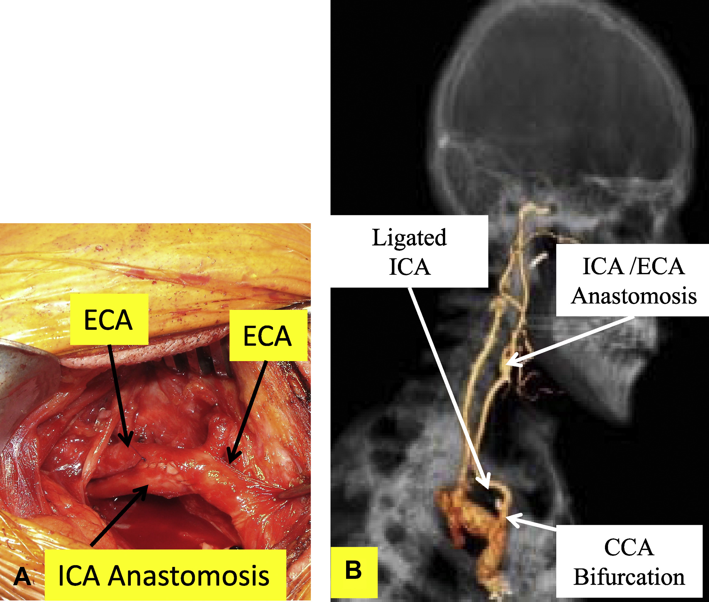 Treatment of a symptomatic intrathoracic internal carotid artery ...