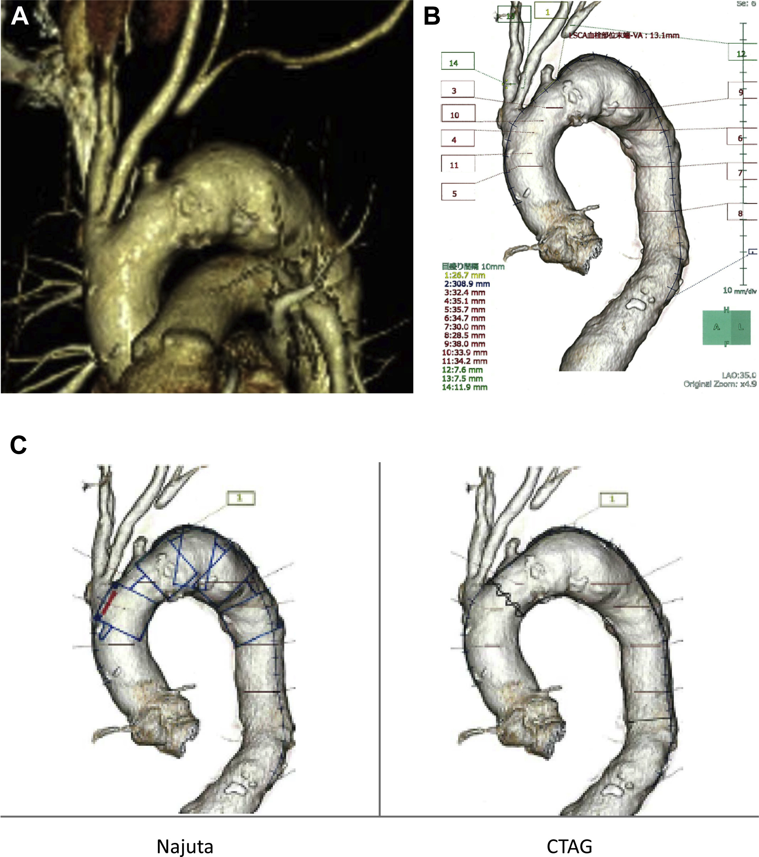 Fenestrated endovascular repair of aortic arch aneurysm in patients ...